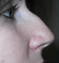 Non Surgical Nosejob - Before treatment photo, female, right side view, patient 24