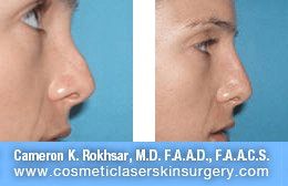 Non Surgical Nosejob - Before and After treatment photo, female, right side view, patient 33