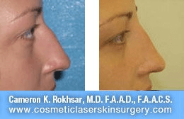 Non Surgical Nosejob - Before and After treatment photo, female, right side view, patient 31
