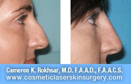 Non Surgical Nosejob - Before and After treatment photo, female, right side view, patient 27