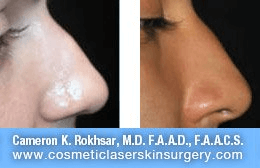 Non Surgical Nosejob - Before and After treatment photo, female, right side view, patient 26