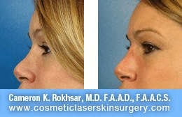 Non Surgical Nosejob - Before and After treatment photo,left side view, female patient 22