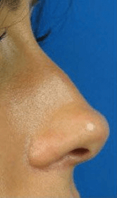 Fillers. Before Treatment photos - female, right side view, patient 13