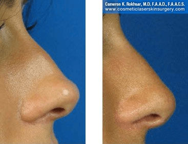 Fillers. Before and After Treatment photos - female, right side view, patient 13