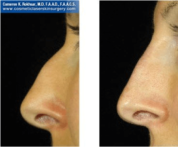 Fillers. Before and After Treatment photos - female, left side view, patient 16