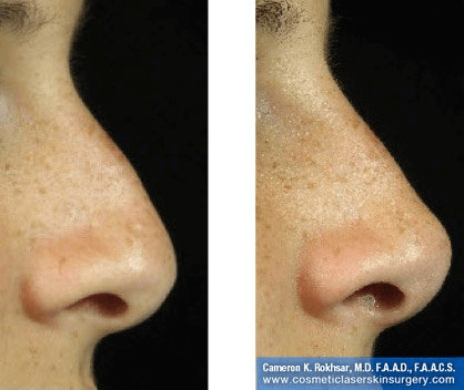 Fillers. Before and After Treatment photos - female, right side view, patient 18