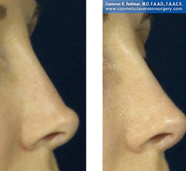 Fillers. Before and After Treatment photos - female, right side view, patient 19