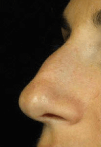 Fillers. Before Treatment photos - left side view, patient 22