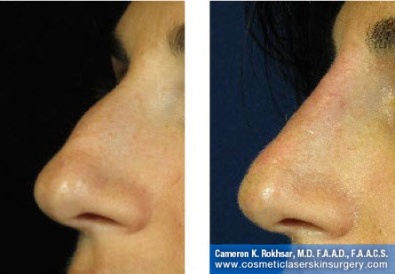 Fillers. Before and After Treatment photos - left side view, patient 22