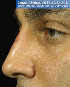 Fillers. After Treatment photos - male, left side view, patient 23