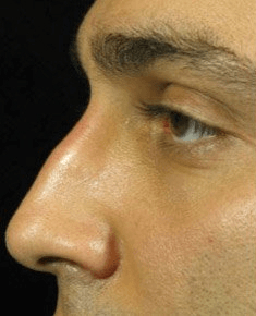 Fillers. Before Treatment photos - male, left side view, patient 23