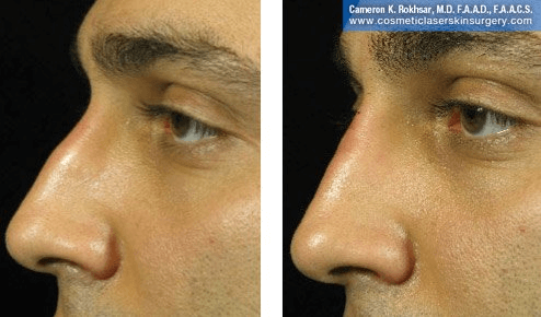 Fillers. Before and After Treatment photos - male, left side view, patient 23