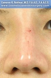 Fillers. After Treatment photos - front view, patient 21