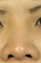 Fillers. Before Treatment photos - front view, patient 21