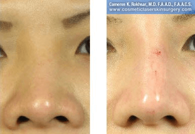 Fillers. Before and After Treatment photos - front view, patient 21