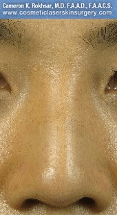 Fillers. After Treatment photos - front view, patient 20