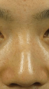 Fillers. Before Treatment photos - front view, patient 20