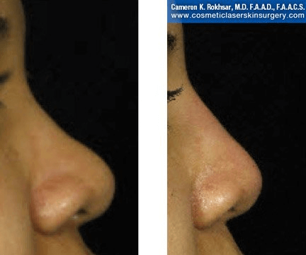 Fillers. Before and After Treatment photos - female, right side view, patient 25