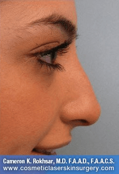 Fillers. After Treatment photos - female, right side view, patient 27