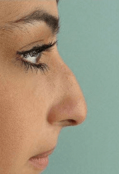Fillers. Before Treatment photos - female, right side view, patient 27