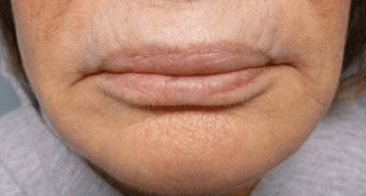 Fillers. Before Treatment photos - female, front view, patient 4