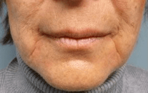 Fillers. Before Treatment photos - front view, female patient 29