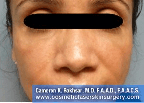 Fillers. After Treatment photos - front view, female patient 30