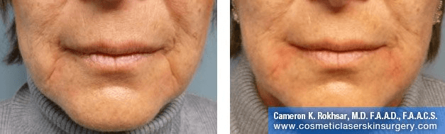 Fillers. Before and After Treatment photos - front view, female patient 29
