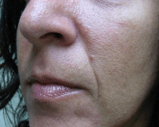 Radiesse for Nasolabial Folds - Before treatment photos, patient 1