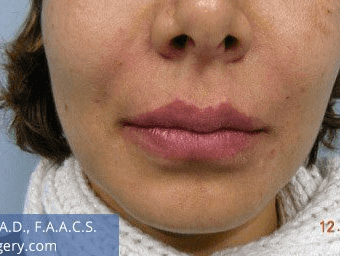 Fillers. After Treatment photos - female, front view, patient 8