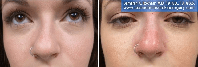 Non Surgical Nosejob - Before and After treatment photo, female, front view, patient 44