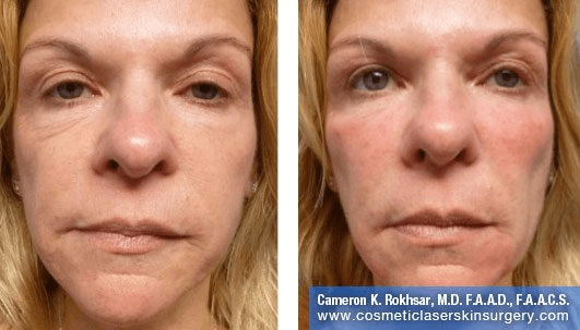 Fillers. Before and After Treatment photos - female, front view, patient 5