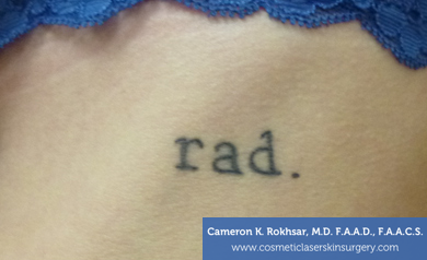 Tattoo Removal - Before Treatment photo, patient 4