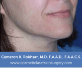 Ultherapy - Before treatment photo, female right side oblique view, patient 2