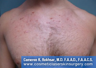V-Beam Laser After Treatment Photo - patient 3