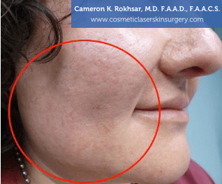 V-Beam Laser Before Treatment Photo - patient 2