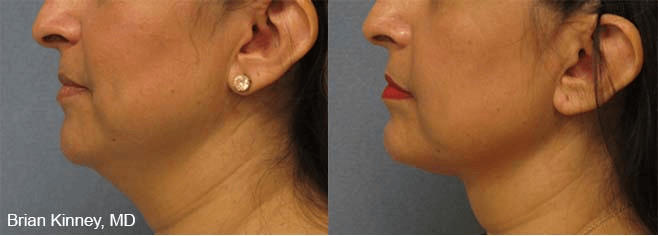 ThermiTight - Before and After treatment photo, female, left side view, patient 4