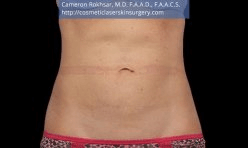 CoolSculpting. After Treatment photo, female - front view, patient 2