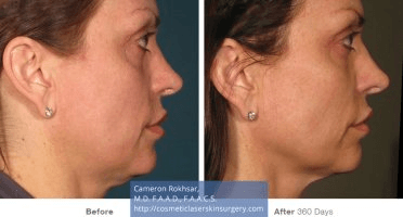 Ultherapy - Before and After treatment photo, female, right side view, patient 1