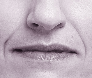 Volbella Injectable Filler for Lip Enhancement - Before Treatment Photo - patient 1