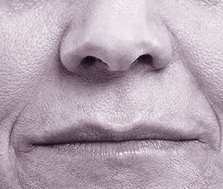 Volbella Injectable Filler for Lip Enhancement - Before Treatment Photo - patient 3