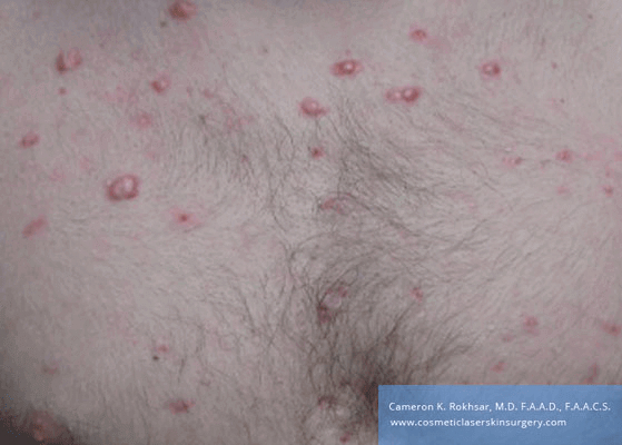 Laser Acne Before Treatment Photo - patient was treated with cortisone injections and the VBEAM Perfecta laser.