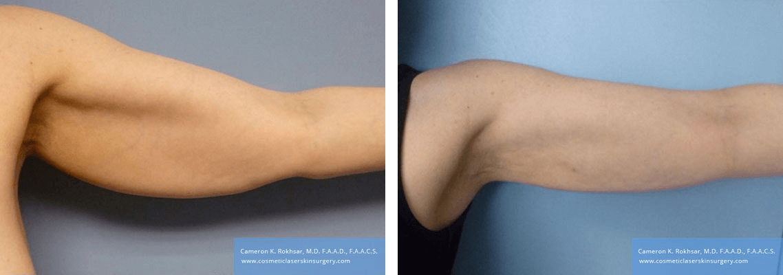 Liposculpture Liposuction - Before and After Treatment photos, front view, female hand, patient 24