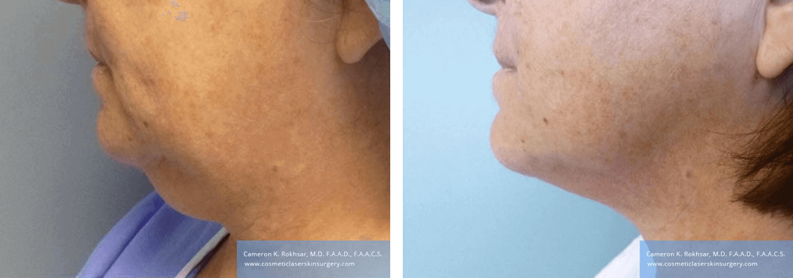Liposculpture Liposuction - Before and After Treatment photos, left side view, female, patient 25