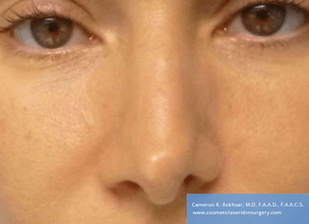 15 minute nosejob - Before treatment photo, female, front view, patient 46