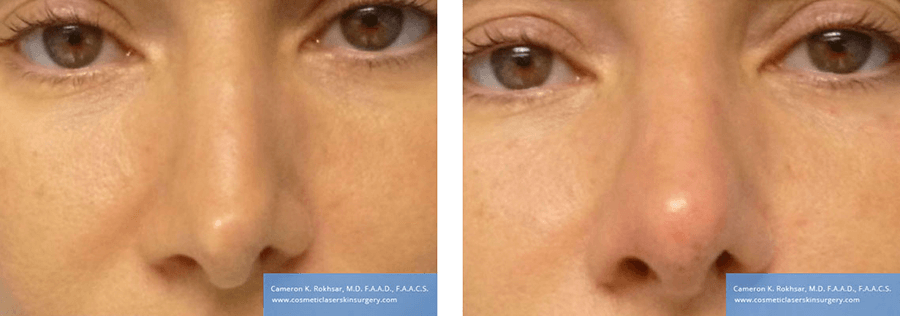 Non Surgical Nosejob - Before and After treatment photo, female, front view, patient 46