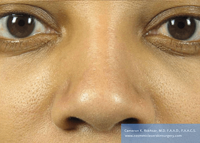 15 minute nosejob - After treatment photo, female, front view, patient 47