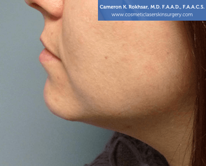 Non-Surgical Chin Job - After Treatment photo, female - left side view, patient 3