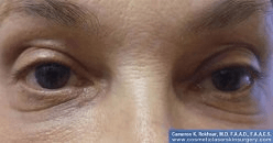 Non-Surgical Eye Lift - After Treatment Photo - female patient 2