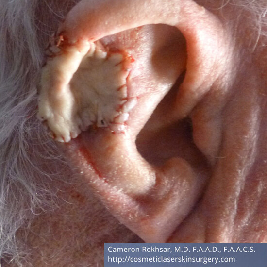 Skin Cancer - Mohs Surgery - Before Treatment Photo - patient 2
